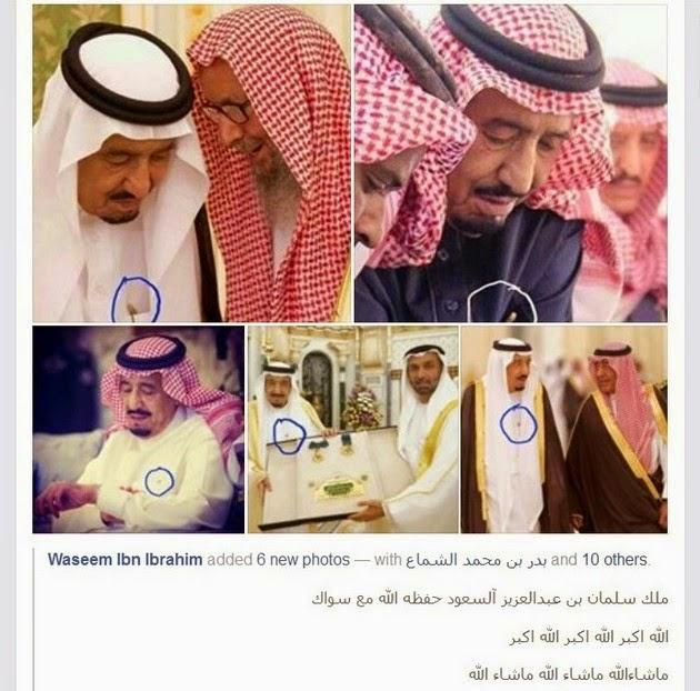 Lakukan Sunah Rasul, Raja Salman Selalu Bawa Siwak