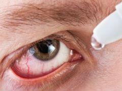 Penyebab Mata Merah dan Iritasi