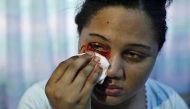 Hematidrosis, Penyakit Langka yang Membuat Penderita Akan Keluarkan Keringat dan Air Mata Darah
